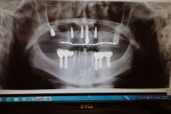 Lantana Florida Periodontal and Dental Implant X-Rays 0001