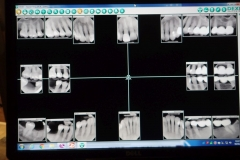 Lantana Florida Periodontal and Dental Implant X-Rays 0003