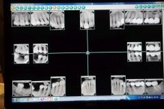 Lantana Florida Periodontal and Dental Implant X-Rays 0003