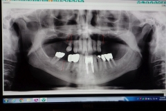Lantana Florida Periodontal and Dental Implant X-Rays 0004