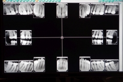 Lantana Florida Periodontal and Dental Implant X-Rays 0006